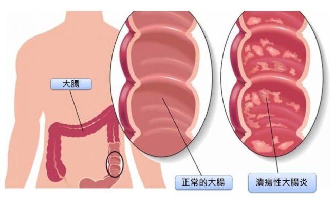 安倍被折磨50年…潰瘍性大腸炎病患 抱馬桶才有安全感
