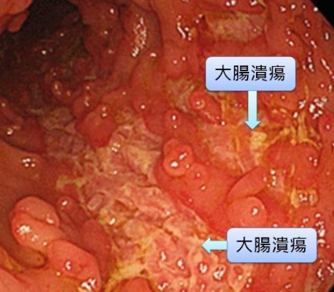 潰瘍性大腸炎發生的原因是體內的免疫細胞錯亂,攻擊自己的大腸。(圖:安南醫院提供)