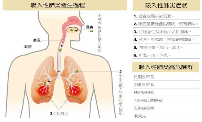 醫藥│吸入性肺炎 老人致死率高